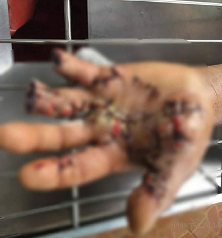 泰国男子接电话手机爆炸 居然把手指爆断